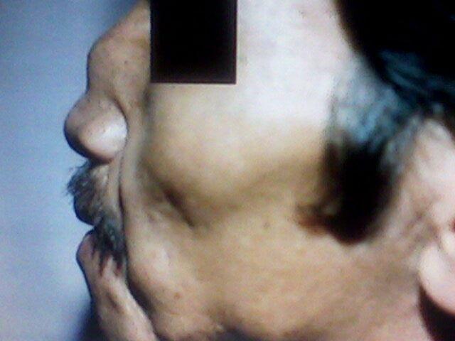 Cirugia para las Orejas con Fotos de Antes y Despues